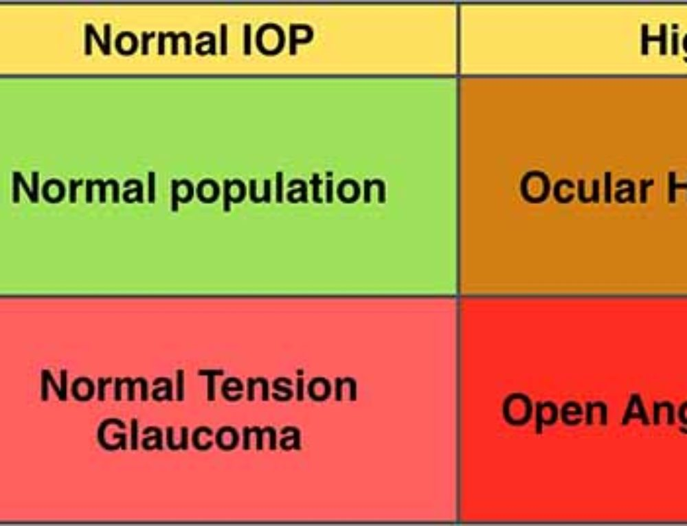 What is the Normal Range of Intraocular Pressure?