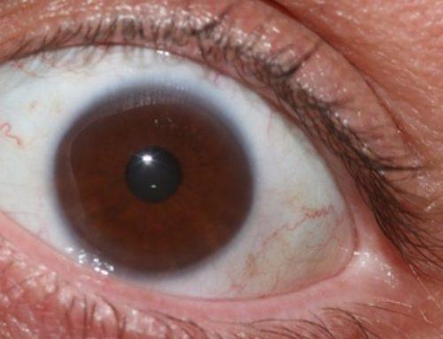 What Causes Bulging Eyes