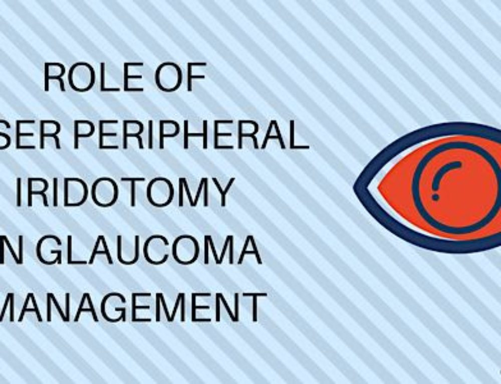 Laser Peripheral Iridotomy Procedure and Its Role in Glaucoma Management