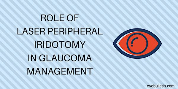 Laser Peripheral Iridotomy Procedure And Its Role In